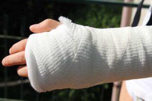 יד שבורה - אילוסטרציה / המחשה