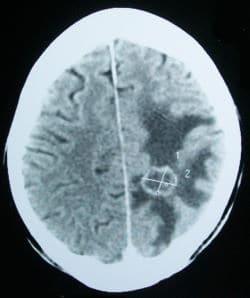 סריקת CT של גידול מוחי