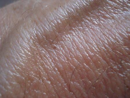 עור האדם